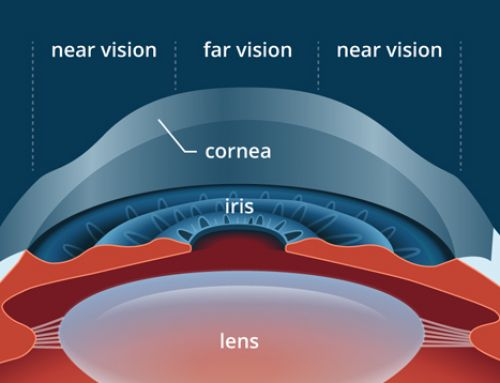 PresbyLASIK (Multifocal ) for Presbyopia Correction
